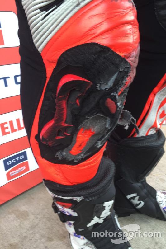 Scott Redding knee slider damage