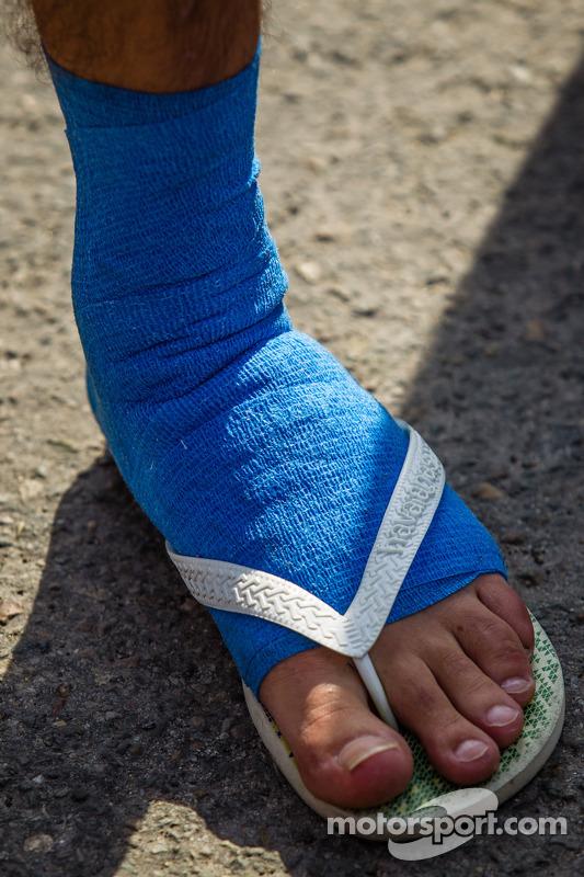 Fernando Rees com pé machucado